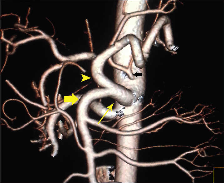 Figure 3: Volume-rendered image showing common trunk (thin yellow arrow) of the celiac artery (arrowhead) and the superior mesenteric artery (fat yellow arrow), also notice to the left gastric artery directly off aorta (black arrow)