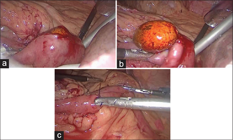 Figure 2: (a) Enterotomy, (b) Gallstone removal, (c) Closure of enterotomy site