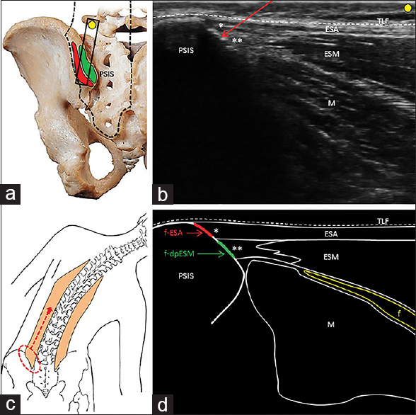 Figure 1: Black rectangle illustrates the probe positioning in the longitudinal oblique plane over the left posterior superior iliac spine. Black dotted line indicates the anatomical site of the erector spinae muscle. Red area shows the attachment site of the erector spinae aponeurosis and the green area shows the attachment site of the deep tendon of the erector spinae muscle. (a) Corresponding ultrasound image shows the thoracolumbar fascia (white dotted line), the erector spinae aponeurosis and its enthesis (single asterisk), the erector spinae muscle and its deep enthesis (double asterisks), the multifidus muscle (M) and the needle's direction in a craniocaudal direction (red arrow) (b).Schematic drawings show the lateral bending test eliciting pain over the opposite posterior medial iliac crest and the irradiation along the cranial portion of the erector spinae muscle (c); the footprint of the erector spinae aponeurosis (red line) and the footprint of the deep tendon of the erector spinae muscle (green line) over the posterior superior iliac spine (d).f = Fat tissue; f-ESA = Footprint of the erector spinae aponeurosis; f-dpESM = Footprint of the deep tendon of the erector spinae muscle