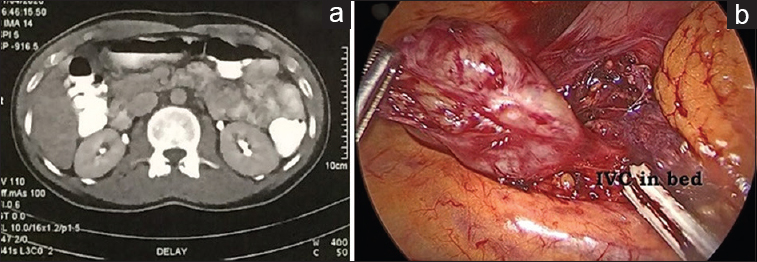Figure 1: (a) Abdominal computed tomography scan demonstrating the retroperitoneal mass. (b) Intraoperative view of the retroperitoneal mass lying under the duodenum