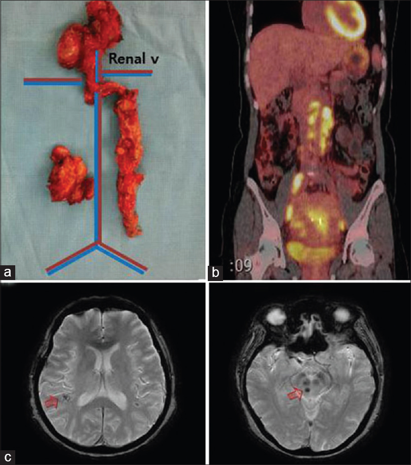 Figure 2: Aggressive clinical course of SACC with p53 expression: Operative findings and images. Resected lymph nodes (a) and PET-CT image (b) showing extensive lymphadenopathy throughout the pelvis and abdomen (case 3). Enhancing masses in the temporal lobe and pons were revealed (c) (case 5). SACC = Serous adenocarcinoma of the uterine cervix; PET-CT = Positron emission tomography-computed tomography